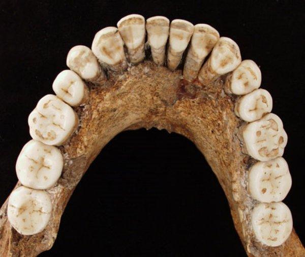 Ученые отыскали антибиотики вкостях неандертальцев