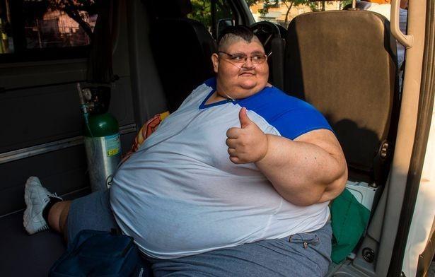 Самый толстый человек напланете похудел на170 килограммов