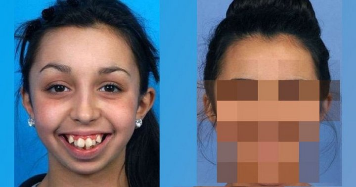 Родители из-за неровных зубов и некрасивой улыбки девушки заволновались только когда ей исполнил