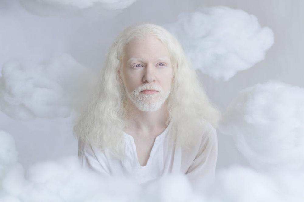 Этот фотограф изИзраиля раскрыла неземную красоту людей-альбиносов