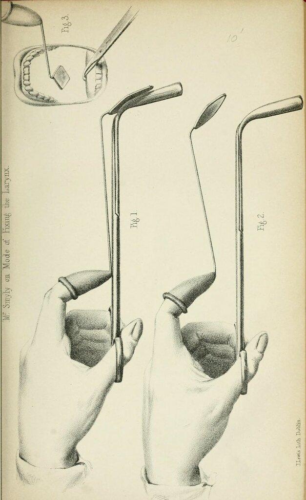 Figs. 1-3.  Mr. Smyly on mode of fixing the larynx. Irish journal of medical science.  1832..jpg