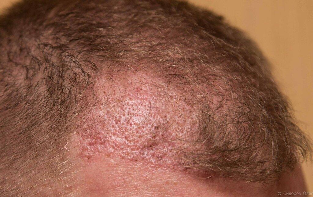 Голова 2 месяца-3.jpg