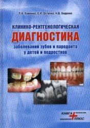 Клинико-рентгенологическая диагностика заболеваний зубов и пародонта у детей и подростков
