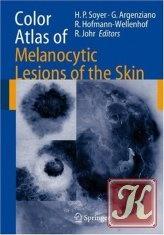 Книга Color atlas of melanocytic lesions of the skin
