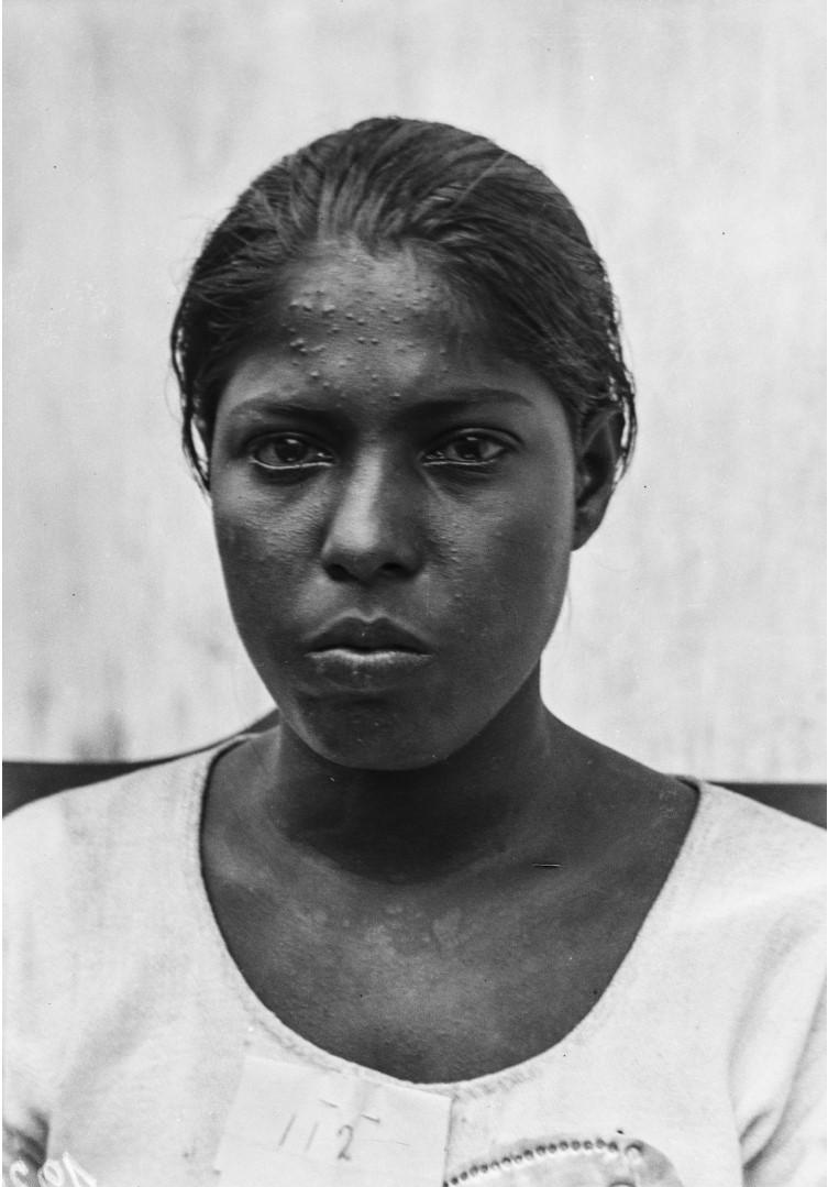 529. Горная сингалка из окрестностей Кегалле