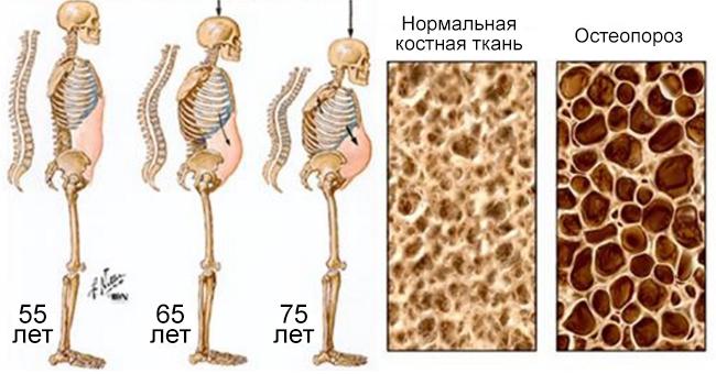 1. Газировки и остеопороз  В состав многих газировок входит кофеин и ортофосфорная кислота, котор