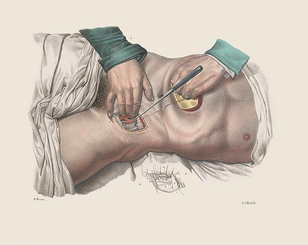 Методы ампутации пальцев ноги