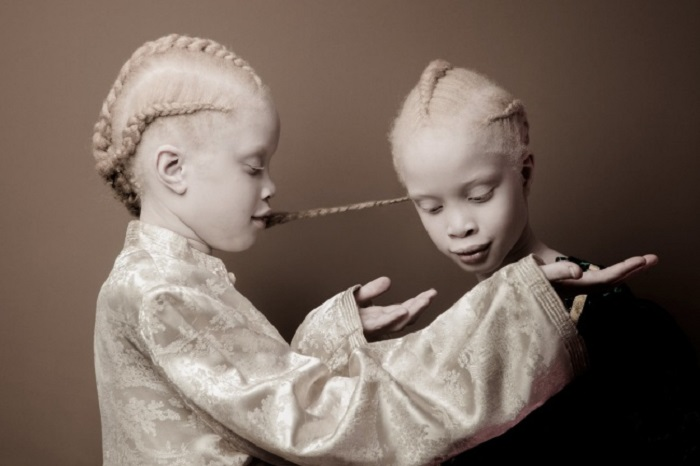 Альбинизм — это врожденное отсутствие пигмента меланина в организме.