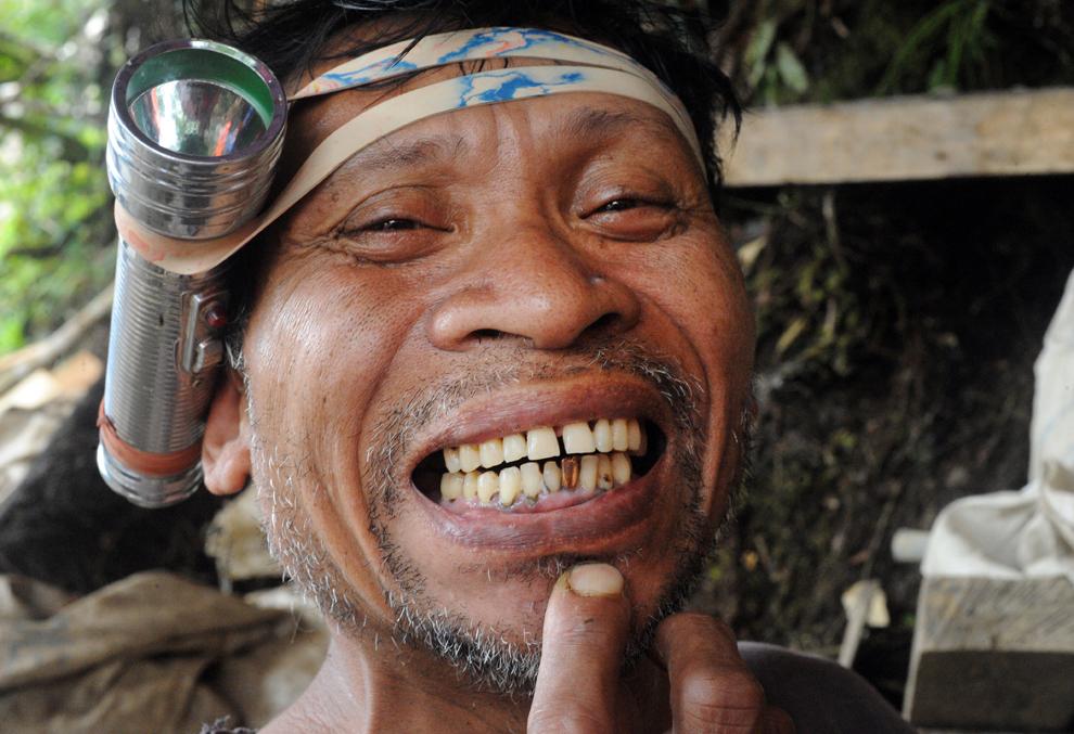 2. Рейналдо Элехорде, бывший фермер, а сейчас мелкий добытчик золота, показывает золотой зуб, сделан