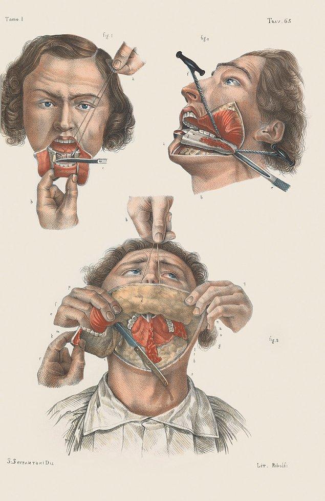 Пережимание артерий для уменьшения потери крови во время операции