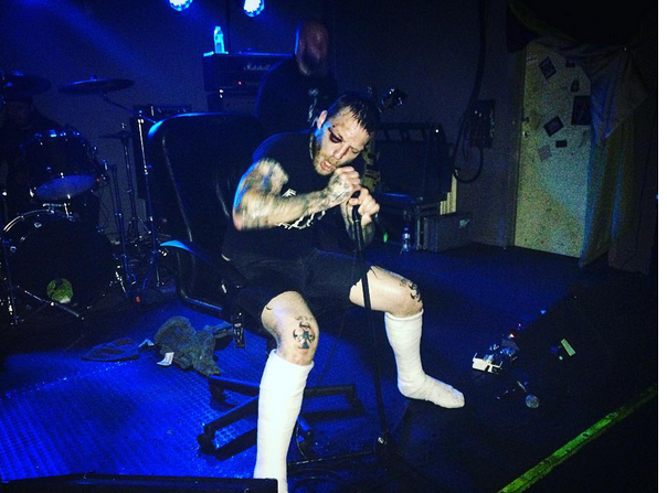 Вокалист метал-группы сломал обе ноги насцене, однако продолжил петь