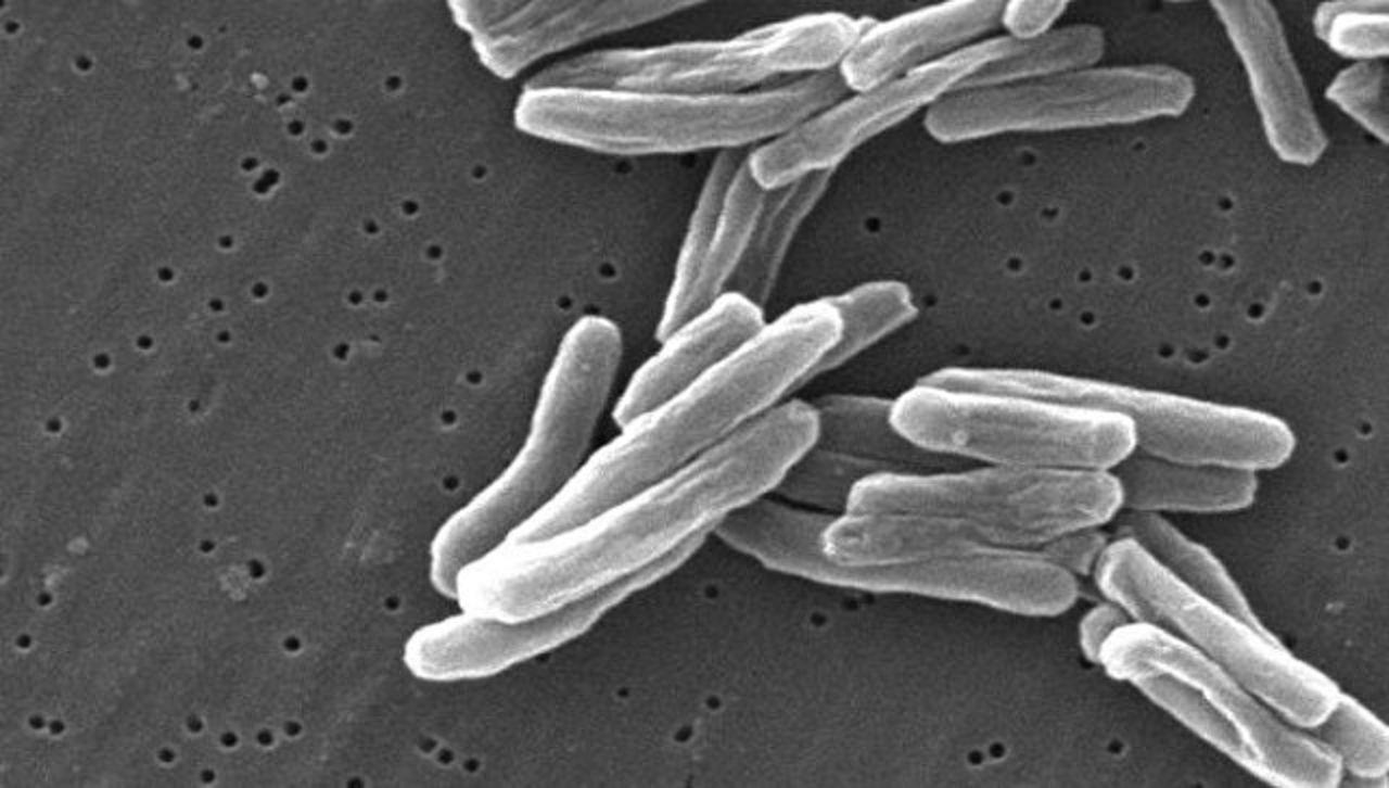 Впервый раз за100 лет: Ученые синтезировали биокапли, способные уничтожить туберкулезную палочку