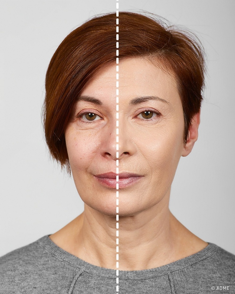 Тональный крем желательно использовать средней плотности, ближе клегкому, чтобы избежать эффекта ма