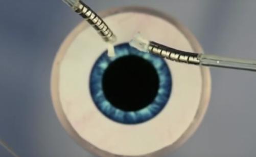 Ученые создали робота-микрохирурга для проведения операций наглазах