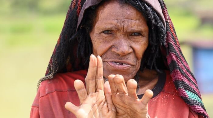 Женская часть папуасского племени дани часто ходила без фаланг пальцев. Они сами себе их отрубал