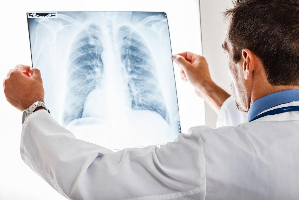 Ученые разработали метод для диагностики рака легких унекурящих
