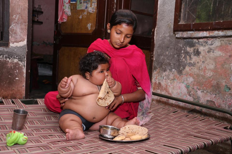 Восьмимесячная девочка из Индии весит как четырехлетний ребенок