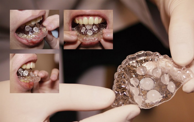 Стоматолог изобрел протез для лучшего минета