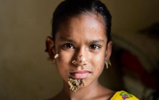 ВБангладеше 10-летняя девочка начала превращаться вдерево