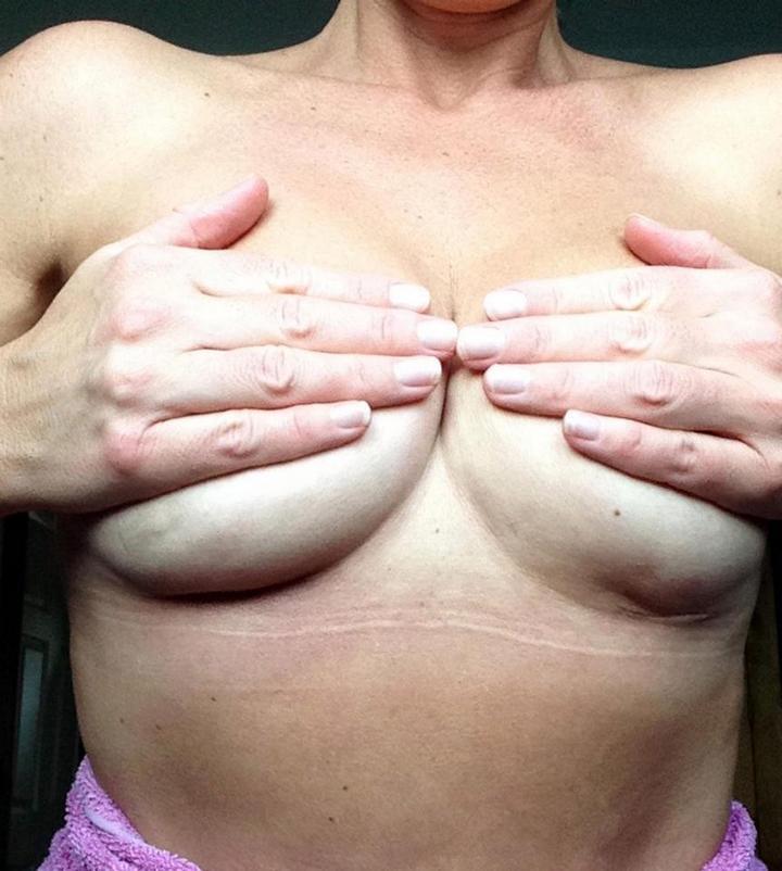 Женщина чуть не умерла из-за силиконовой груди