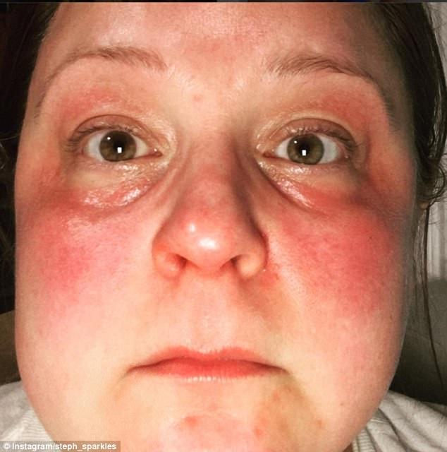 А эта женщина решила самостоятельно смешать маску, но добавила слишком много эфирного масла мяты и п