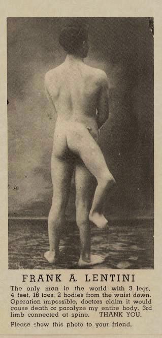 С возрастом сам факт физической аномалии ушел на второй план — Лентини был любим публикой и ко