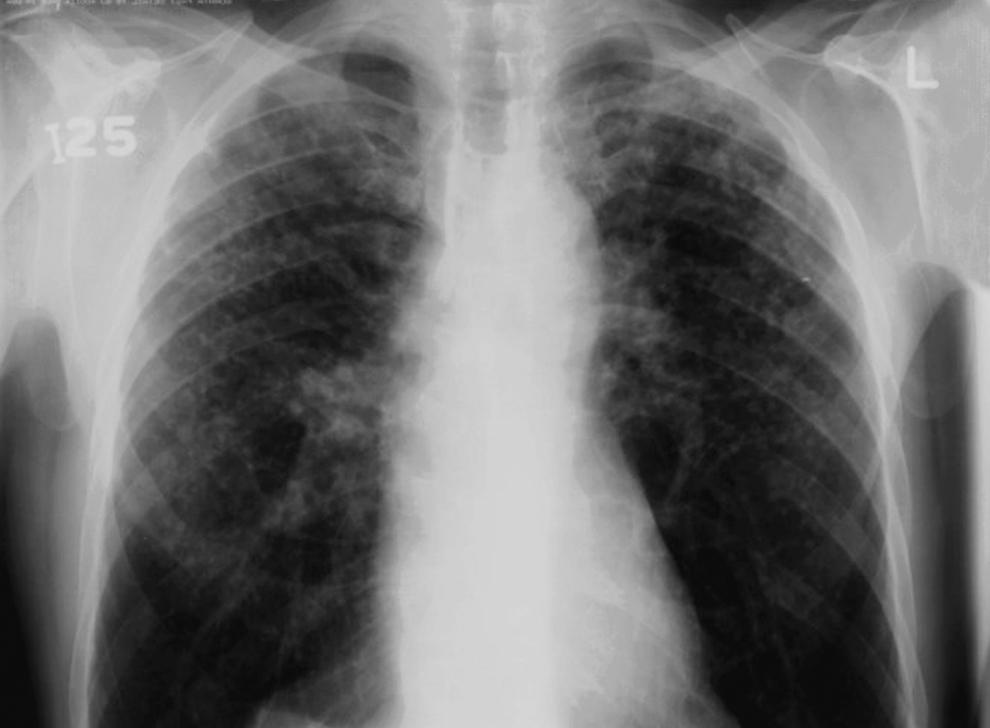 6. Затемнения на рентгеновском снимке грудной клетки показывают последствия силикоза у добытчика зол
