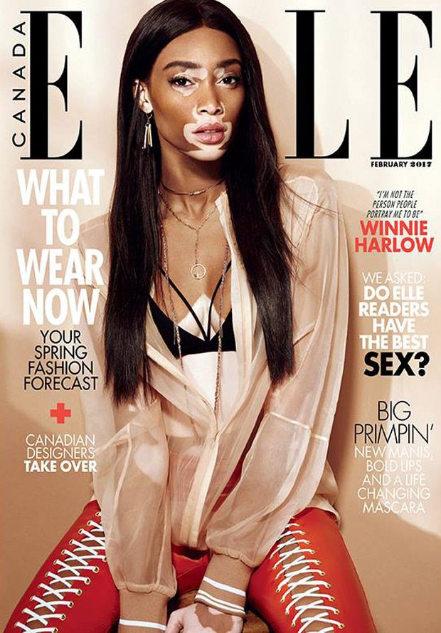 Winnie Harlow Stars in Elle Canada February 2017 Cover Story
