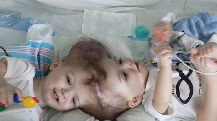 ВСША хирурги удачно распределили сиамских близнецов, сросшихся головами
