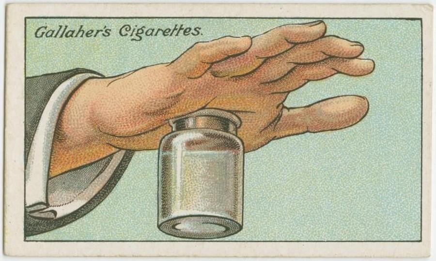 2. Как достать занозу Заполните бутылку с широким горлышком горячей водой и плотно прижмите к ней ру