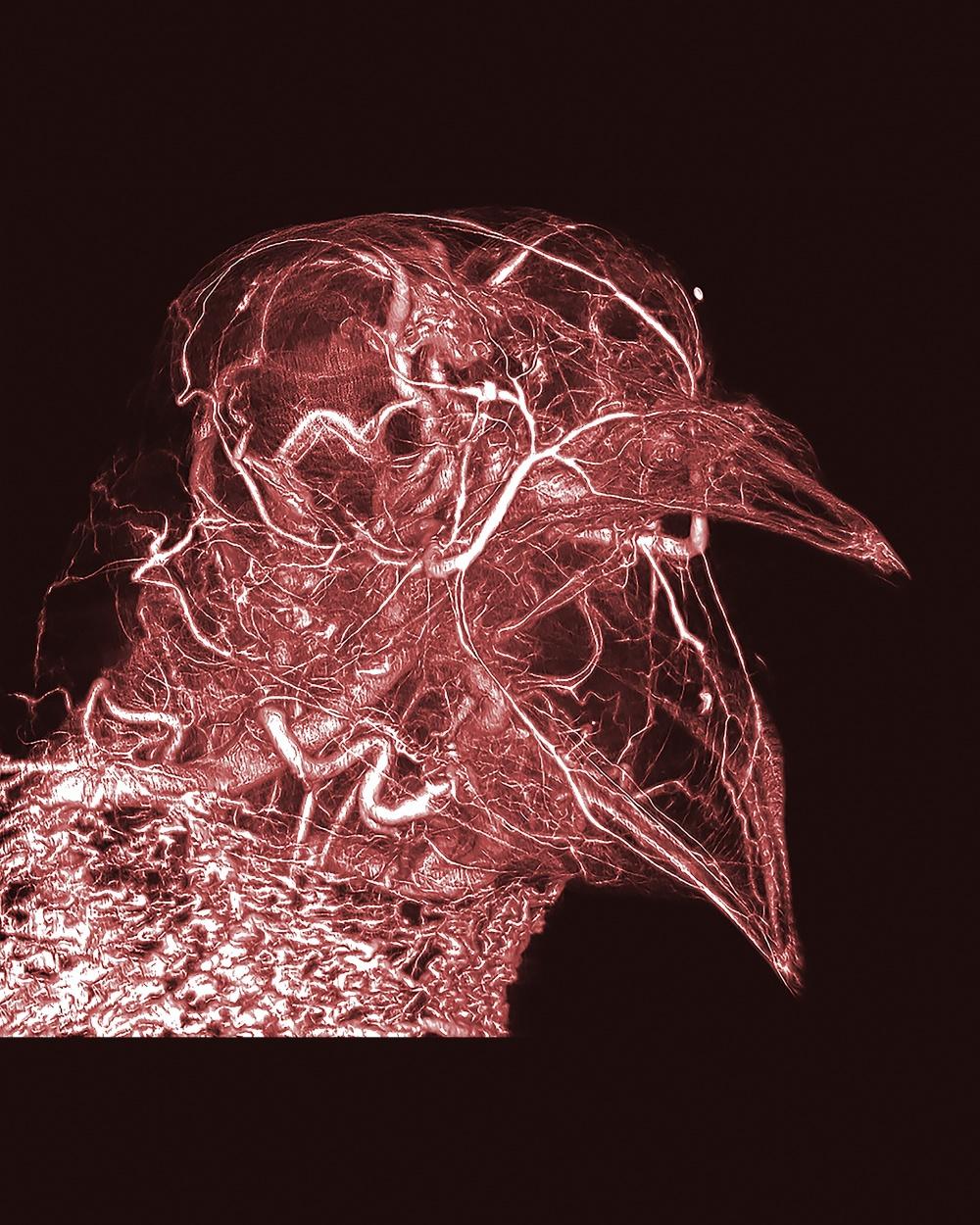 © Scott Echols, Scarlet Imaging and the Grey Parrot Anatomy Project   Изменения плаценты мы