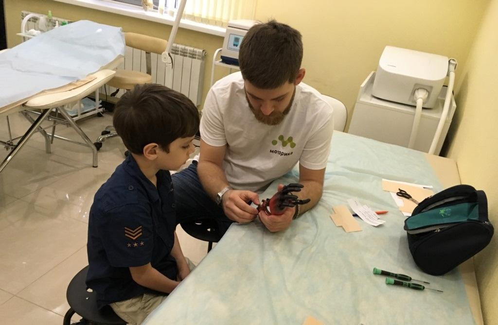 Впервый раз вДагестане ребенку установили протез руки, распечатанный на3D-принтере