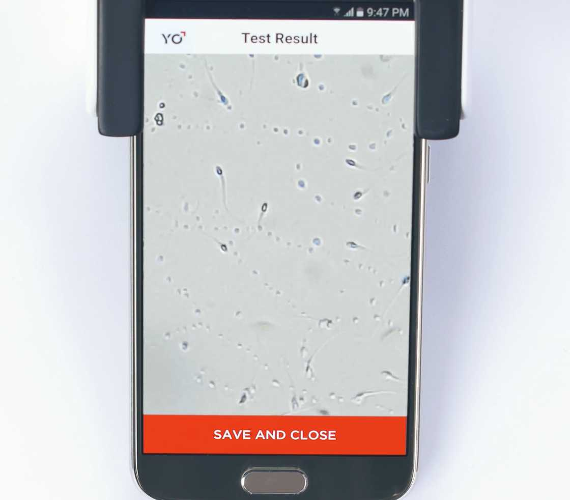 YO Sperm Test - Test your fertility with your smartphone