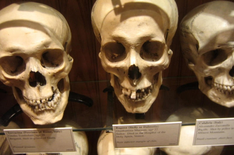 The Mutter Museum boasts thousands upon thousands of medical oddities and pathological specimens. Th
