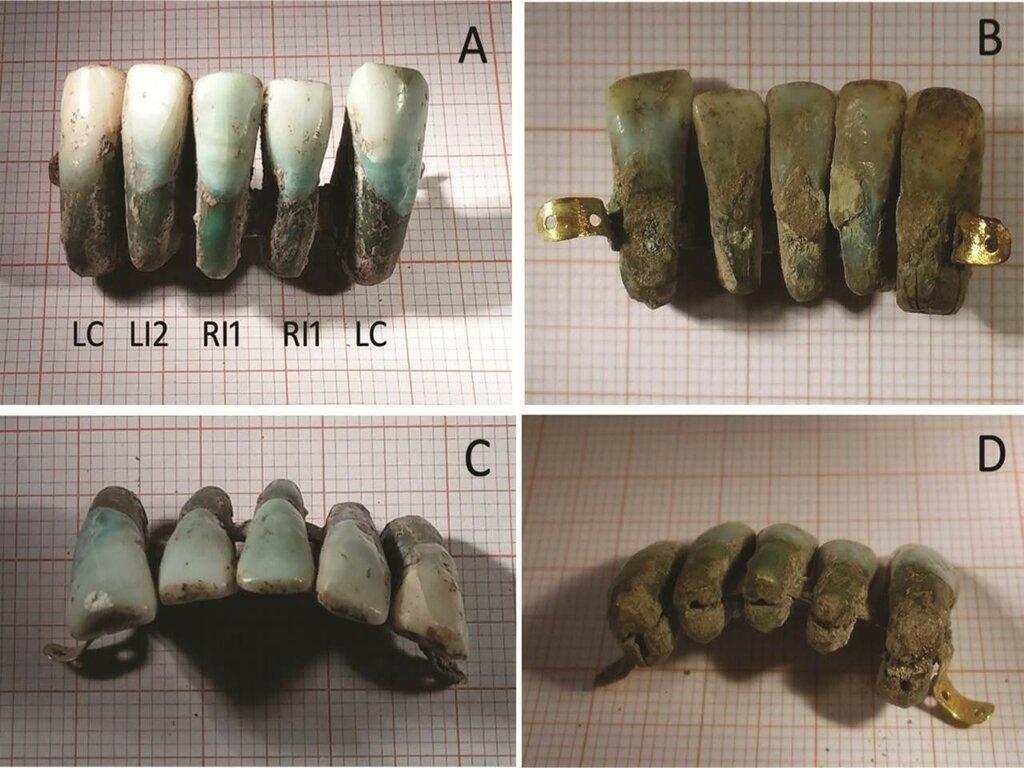 ps_Medieval-dentures.-University-of-Pisa.jpg