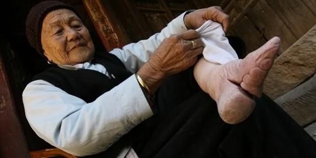 Проколы ушей и татуировки — это пол беды. Некоторые метаморфозы часто заканчивались смертью «красави