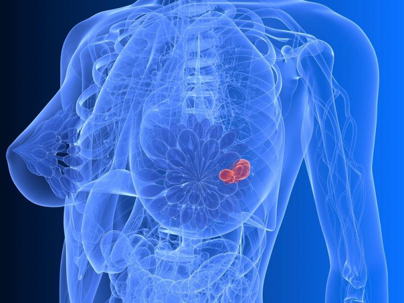 Одинокие женщины чаще умирают отрака груди— исследование