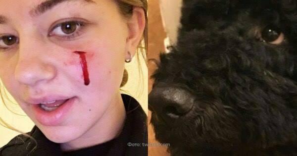 Собака Обамы укусила за лицо 18-летнюю подругу семьи