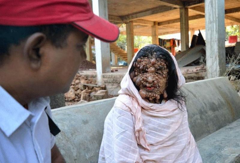 Женщина-картошка из Бангладеш
