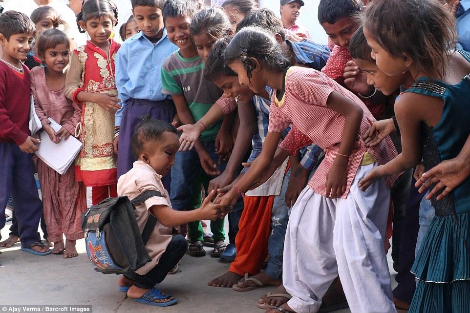 Жители индийской деревни поклоняются мальчику с деформированной головой как богу Ганеше