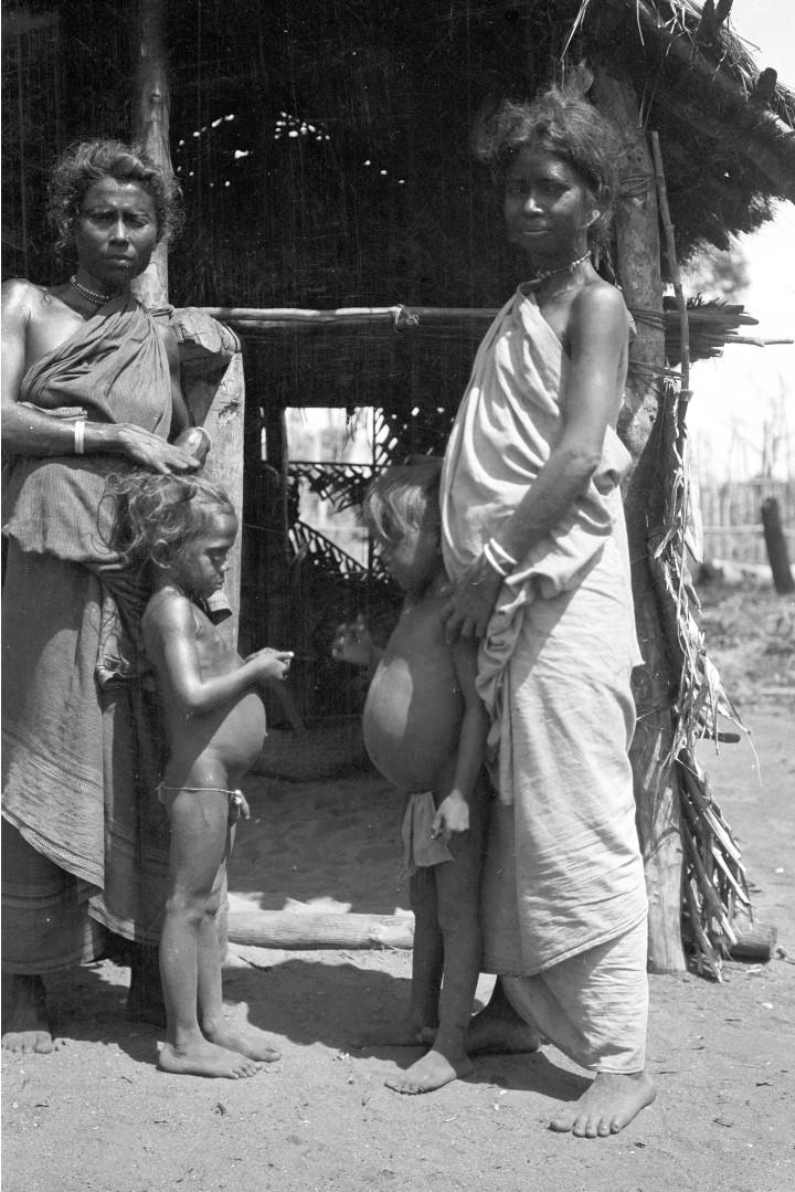 294. Две женщины ведды с детьми, чьи животы опухли от малярии