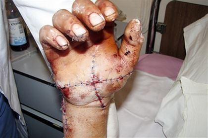 Омские медики пришили мужчине 4 пальца, которые отрезало пилой