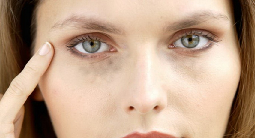 Учёные пояснили появление чёрных кругов под глазами
