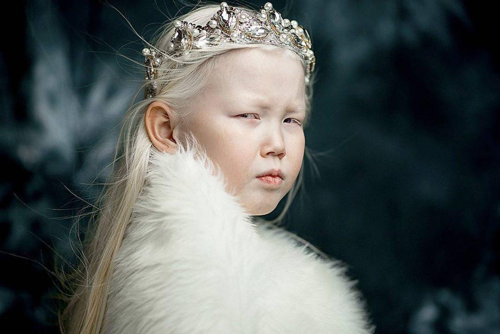 Рассказывает мама девочки, Елена: «Мы до 8-летия не выставляли ее фотографии в соцсети, никому не по