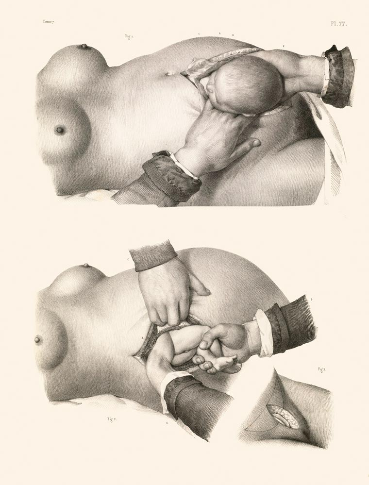 Crucial interventions - Morbid illustrations from the 19th century surgery