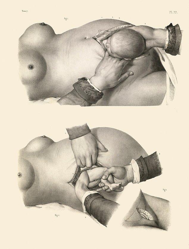 Перевязка артерии в паховой области с использованием швов и крючка, а также со сжатием живота, чтобы