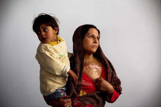 Девушки из Афганистана, например, решили покончить с собой путем сожжения, но выжили...