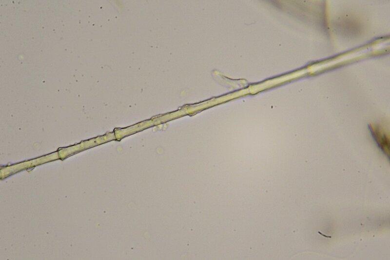 Капля болотной воды под микроскопом: длинная сегментированная нить то ли водоросли то ли какого другого живого существа