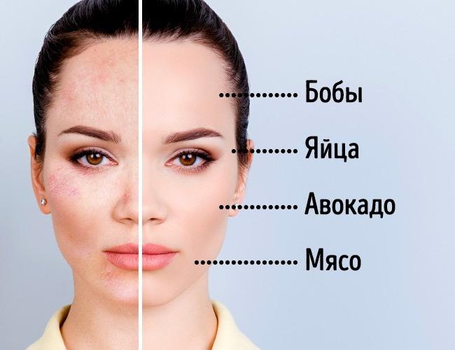 Склонность ксухой коже вомногих случаях объясняется недостатком холестерина нафоне избытка витами