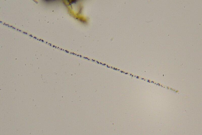 Капля болотной воды под микроскопом: длинная двигающаяся нить с множеством органоидов (хлоропластов?) внутри